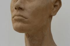 Kopfplastik